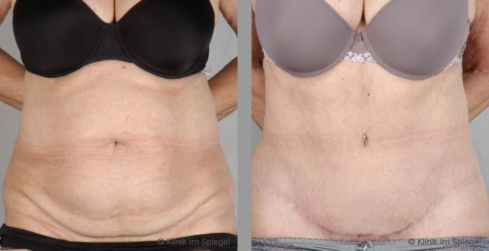 Ästhetische Chirurgie | Bauchstraffung (Abdominoplastik