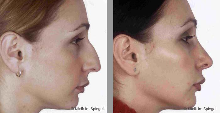 Aesthetic Surgery Nose Correction Rhinoplasty Klinik